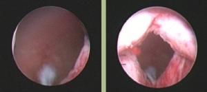 Prostate treatment in Cambridge UK